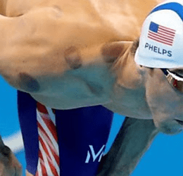 What is Dry Cupping Therapy?